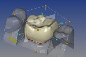 El diagnóstico 3D y sus ventajas