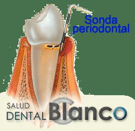 SaludDentalBlanco_Sondaperiodontal