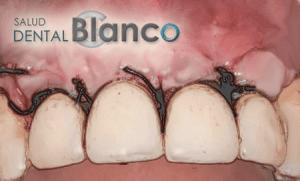 SaludDentalBlanco_cirujial_oral