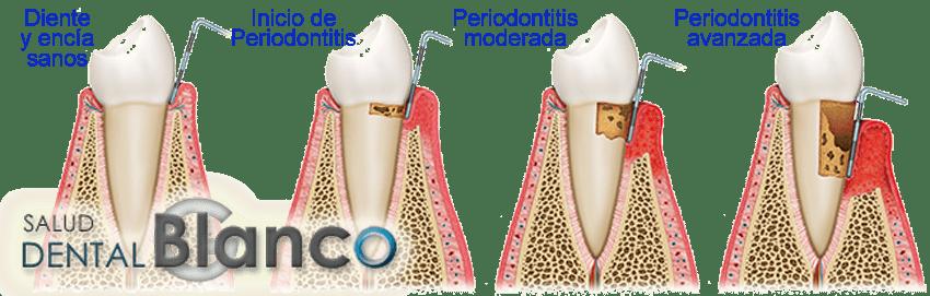 SaludDentalBlanco_periodontitis