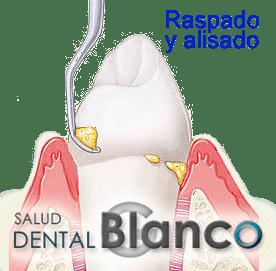 SaludDentalBlanco_raspado