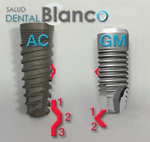Implantes_AC_CM