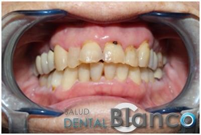 Carillas Salud dental Blanco