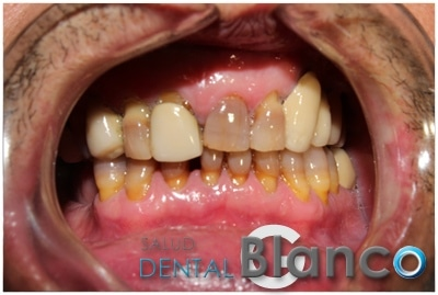 Carillas Salud dental Blanco