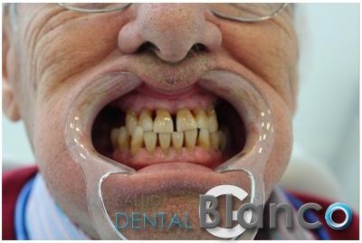 Quistes e Implantes Salud dental Blanco