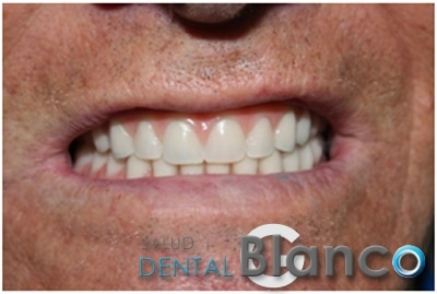 Quistes e Implantes Salud dental Blanco
