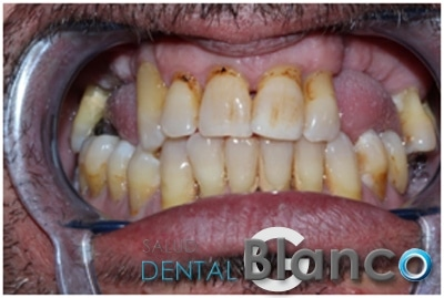 Exéresis de Quiste: rehabilitación con Implantes. Antes y Después