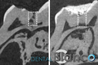 ¿Los dientes vuelven a crecer? Últimos estudios