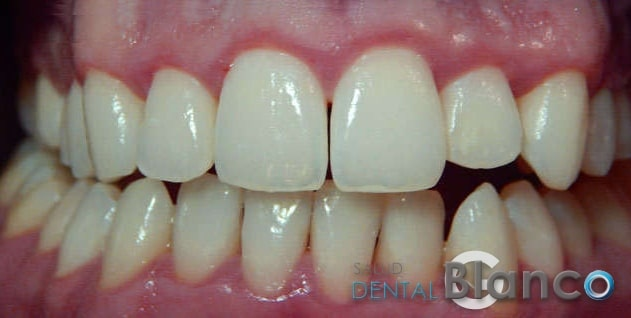 Gingivitis_Blog