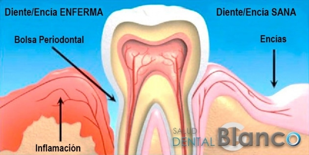 Periodontal_Blog
