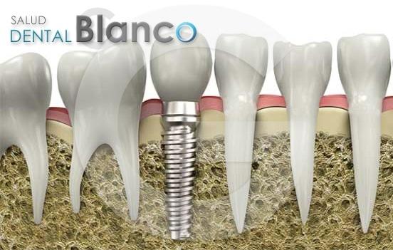 Osteointegración del implante en 20 días