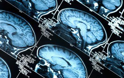 El Alzheimer y la salud bucodental
