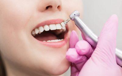 Piorrea: ¿Es la periodontitis una enfermedad contagiosa?