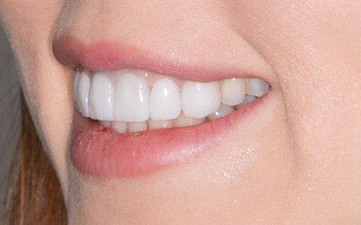 Blanqueamiento dental: mitos y verdades