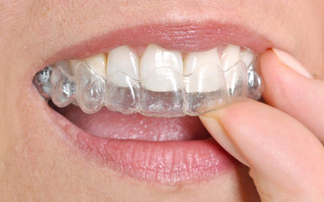 5 Tipos de férula dental: conoce sus funciones