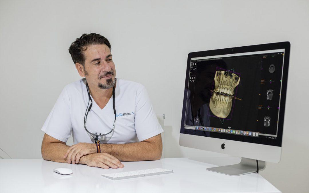 Así es tu primer diagnóstico dental 3D