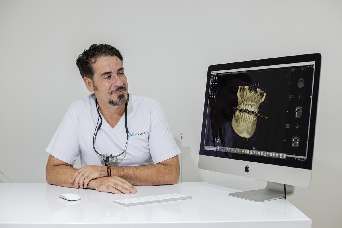 Así es tu primer diagnóstico dental 3D.