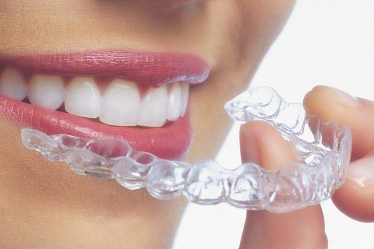 Tratamiento de ortodoncia con invisalign Madrid