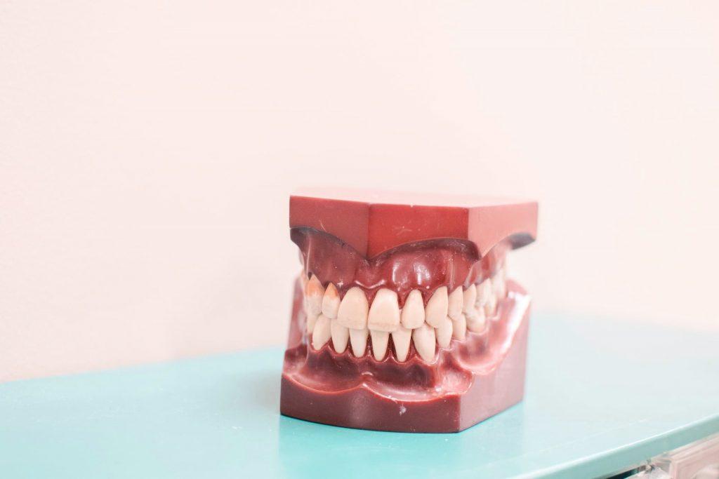 Proceso de descalsificación de la dentadura