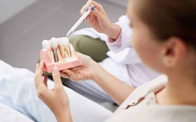 Mejores alternativas ante una pérdida dental