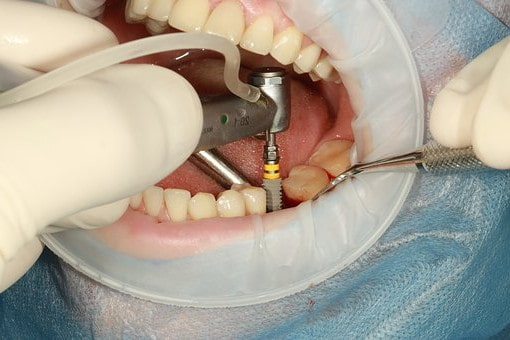 Elige tu Implante dental Madrid