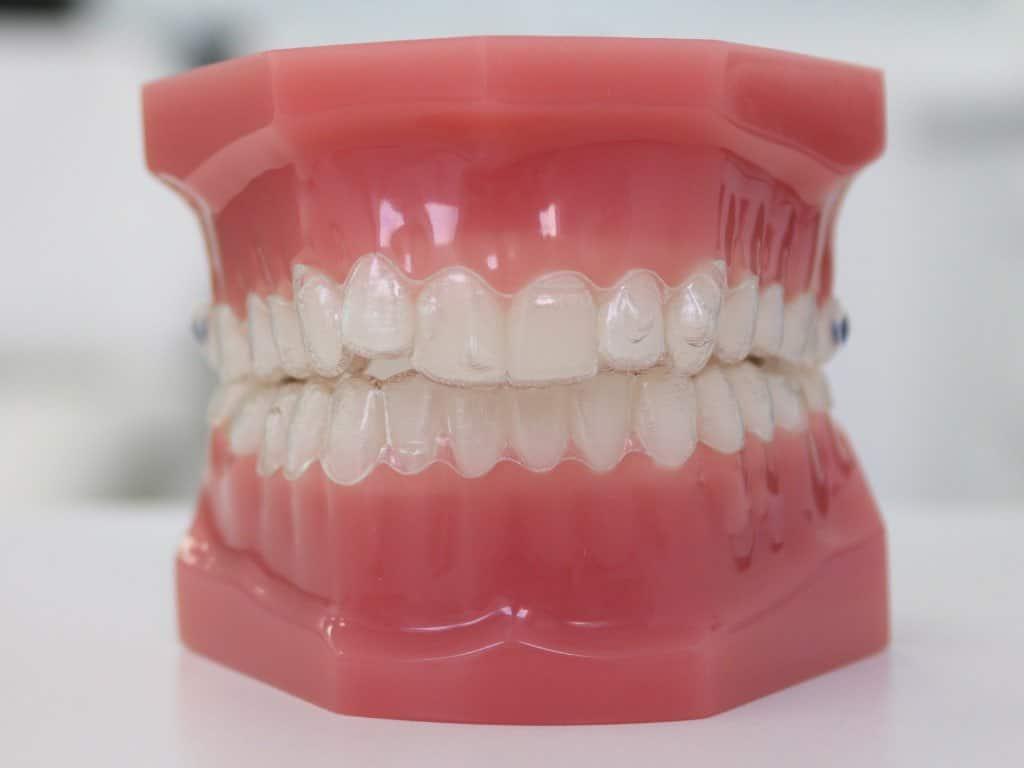 Cualquiera puede usar el tratamiento ortodoncia invisalign Madrid