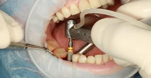 Cómo solucionar la falta de una pieza dental