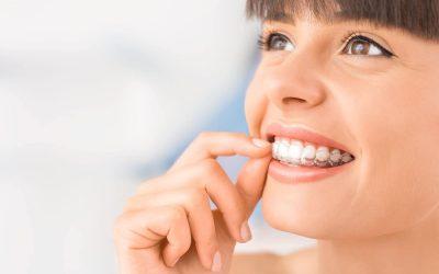 Invisalign: las preguntas más frecuentes sobre la ortodoncia invisible