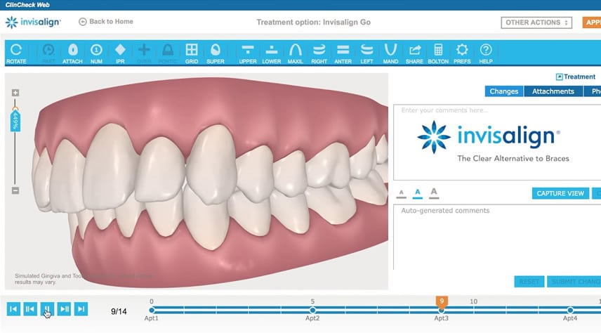 tratamiento de alta tecnología Invisalign clincheck