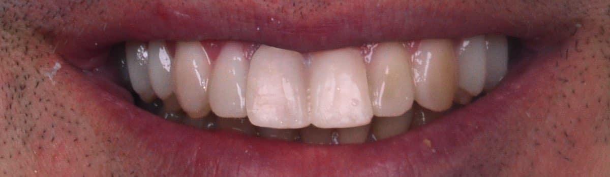 Diseño digital de sonrisa dientes