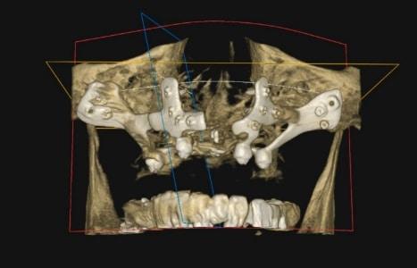 implantes corticales en Madrid