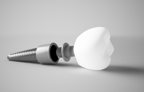 implantes en madrid