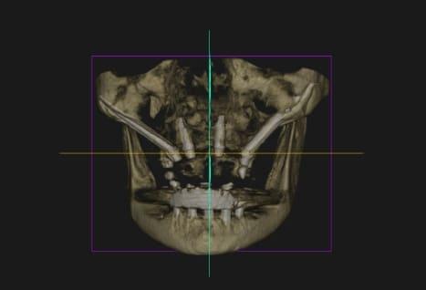 radiografía gratuita